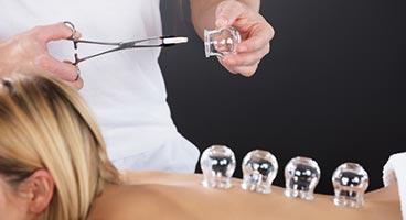 En el Cupping con ventosas de cristal el vacío se obtiene según el método tradicional.